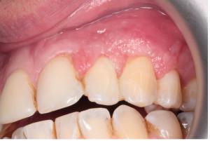 Chirurgické řešení gingiválního recesu před a po operaci