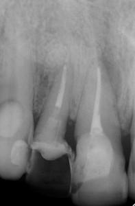 Endodoncie s nástrojem a po ošetření
